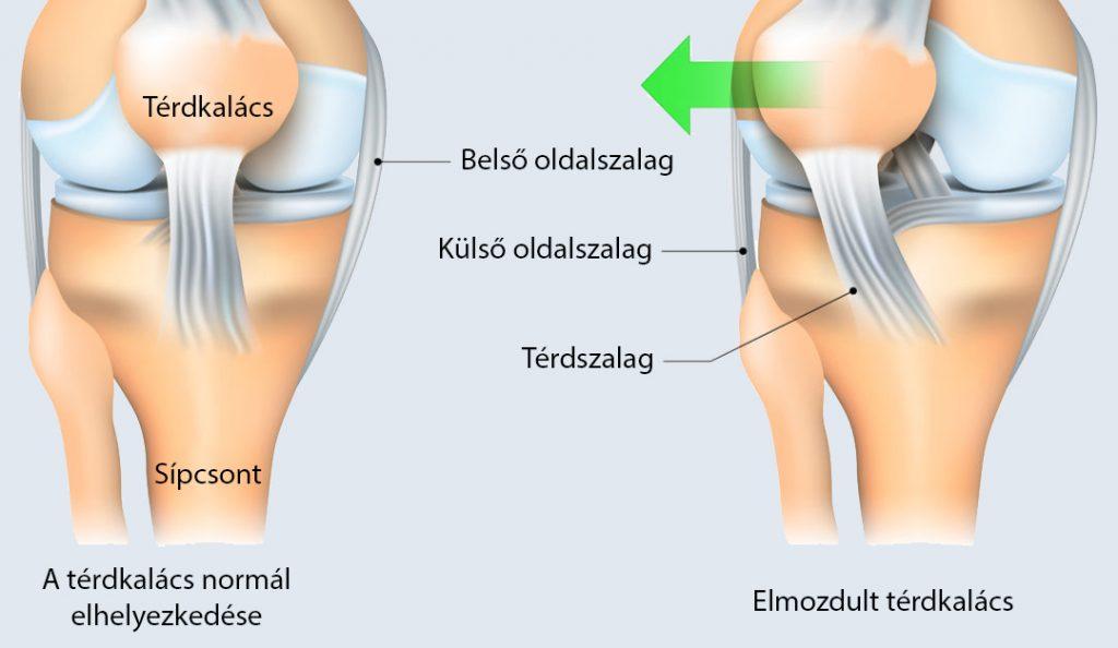 térdizomgyulladás-kezelés gyakorlatok a boka ízületeinek fájdalmára