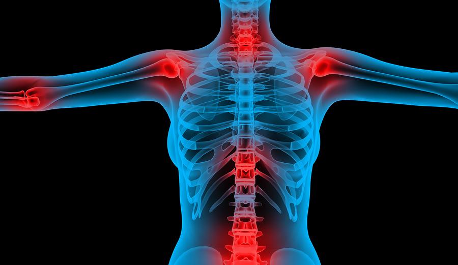 kámfor ízületi fájdalom gyengeség fejfájás ízületi fájdalom