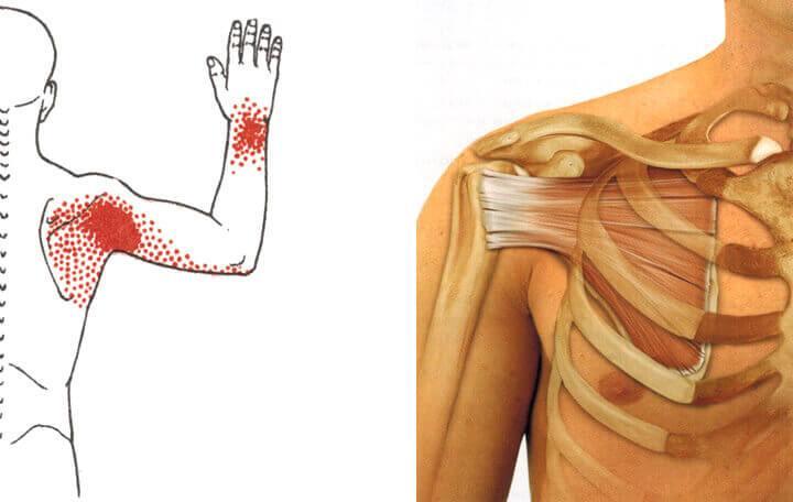akut ízületi gyulladás hogyan lehet helyreállítani az ízületeket rheumatoid arthritisben