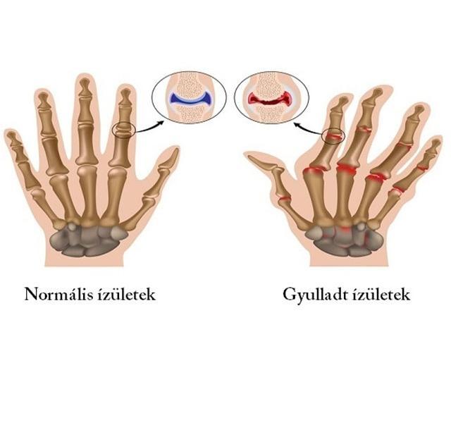 a kezek csontok és ízületek fájnak mag 30 az artrózis kezelésében