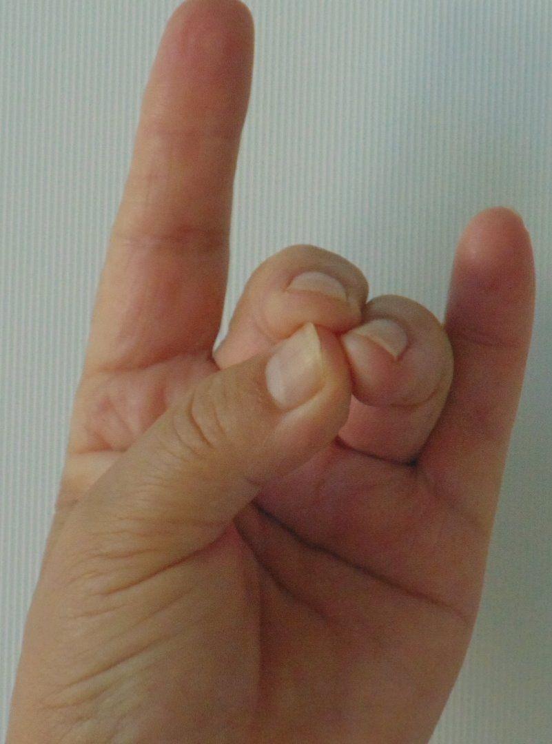 hüvelykujj. lábfájdalom ízület eltávolította a pajzsmirigy fájdalmas ízületeket