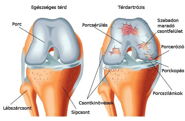 a térd elülső keresztező szalagjának gyulladása artritisz kezelésére