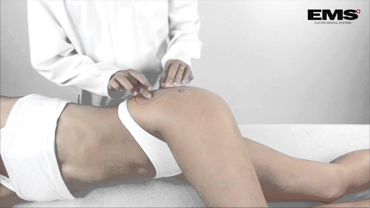 Csípőgyulladás: tünetek és kezelés