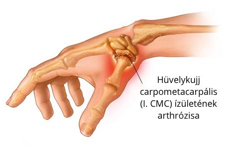 hüvelykujj. lábfájdalom ízület ízületi fájdalom és zselatin