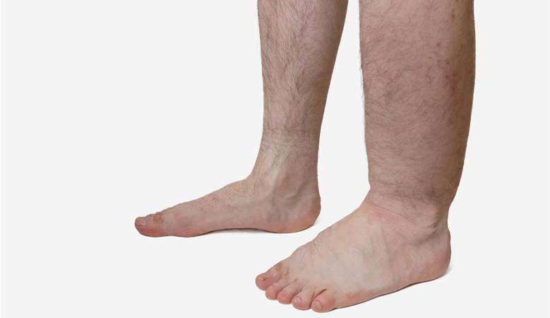 a láb lábának ízületi gyulladása