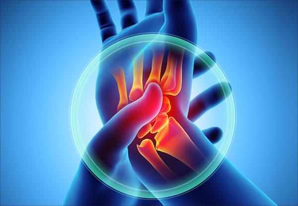 az artrózis új kezelése napi kondroitin és glükozamin normája