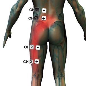 csípőideg-gyulladáskezelés ízületi fájdalom és annak okai