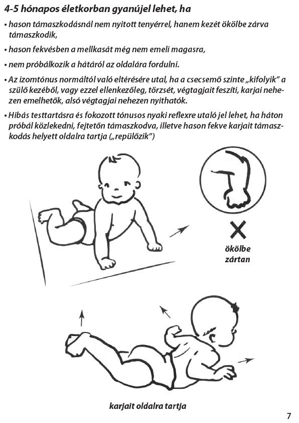 csípőbetegség csecsemőknél a medence csontok és ízületek betegségei