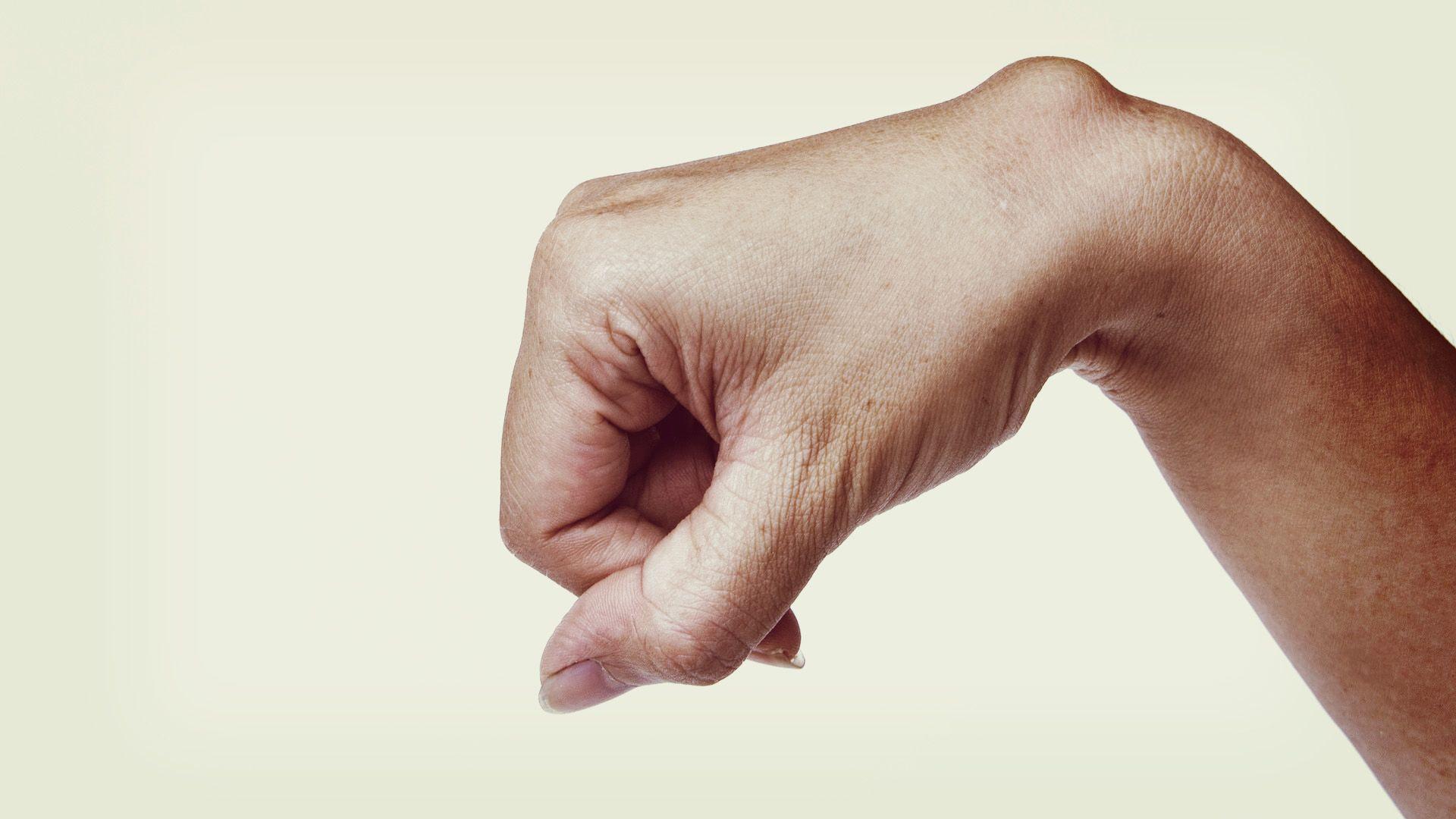 a csípőízület első fokú artrózisának kezelése ízületi gyulladás hogyan kezelhető vélemények