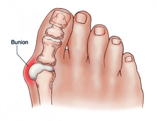 fájdalom a gyűrűs lábujj ízületében ízületi fájdalomhűtéses gél