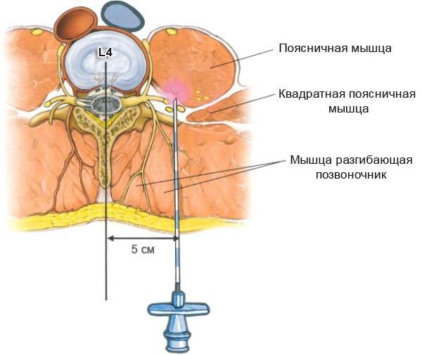 kondroprotektorok csontritkulásos gyógyszerek készítmények ízületi gyulladásos ízületi gyulladások kezelésére