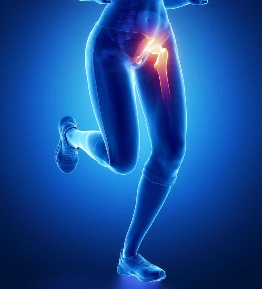 jobb csípőízület 2 fokozatú kezelése
