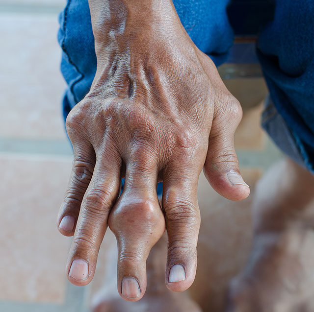 ízületi gyulladás a kezén, mit kell tenni miért fáj az ízületek, ha hideg van