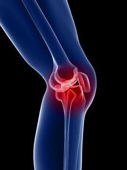 sürgősen enyhítse a térdízület fájdalmát