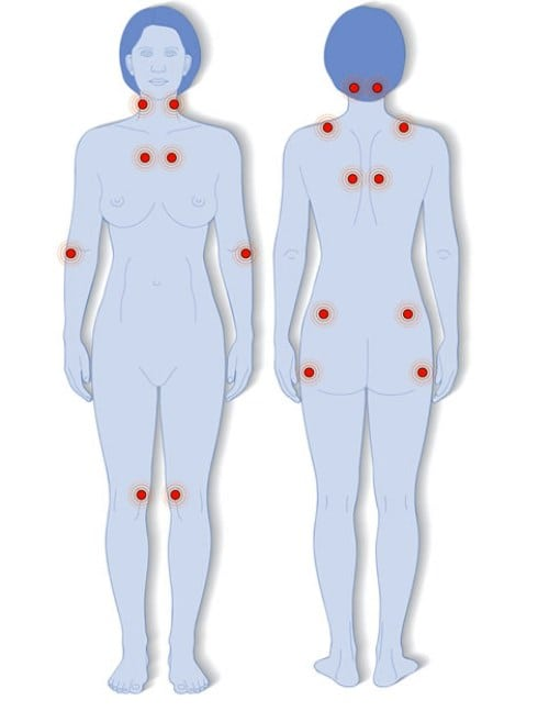 a térdízület ízületi gyulladásának kezelése és függetlensége