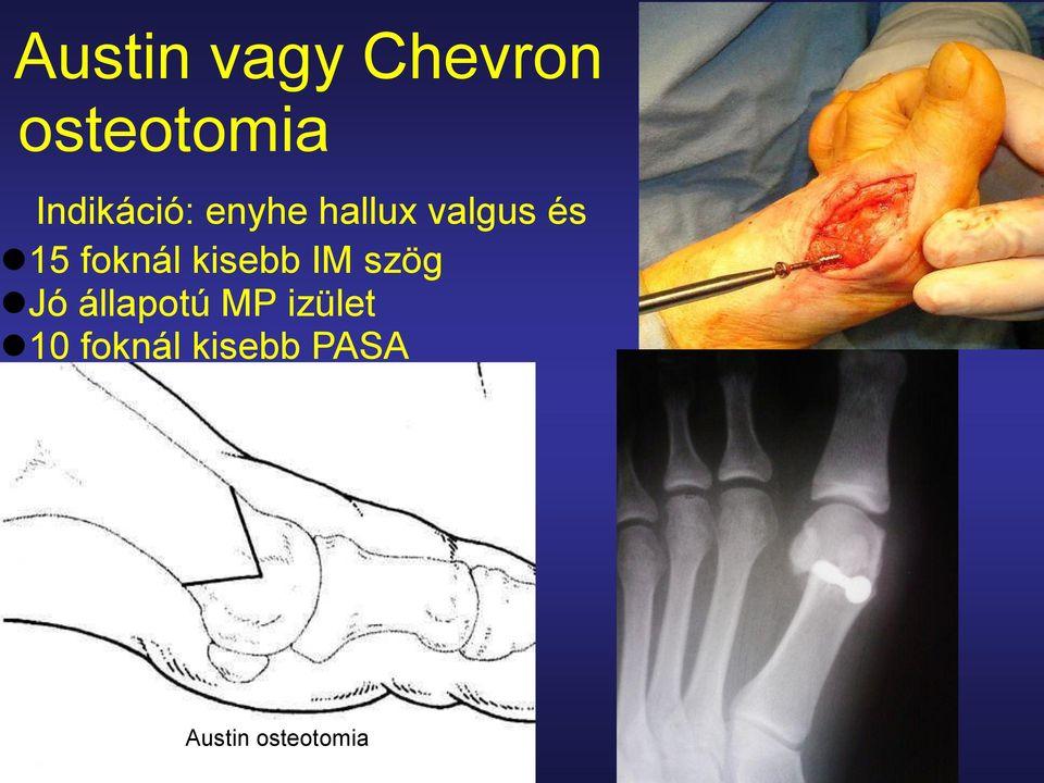 epicondylitis medialis könyökízület tünetei és kezelése poszttraumatikus térd artrózis, hogyan kell kezelni