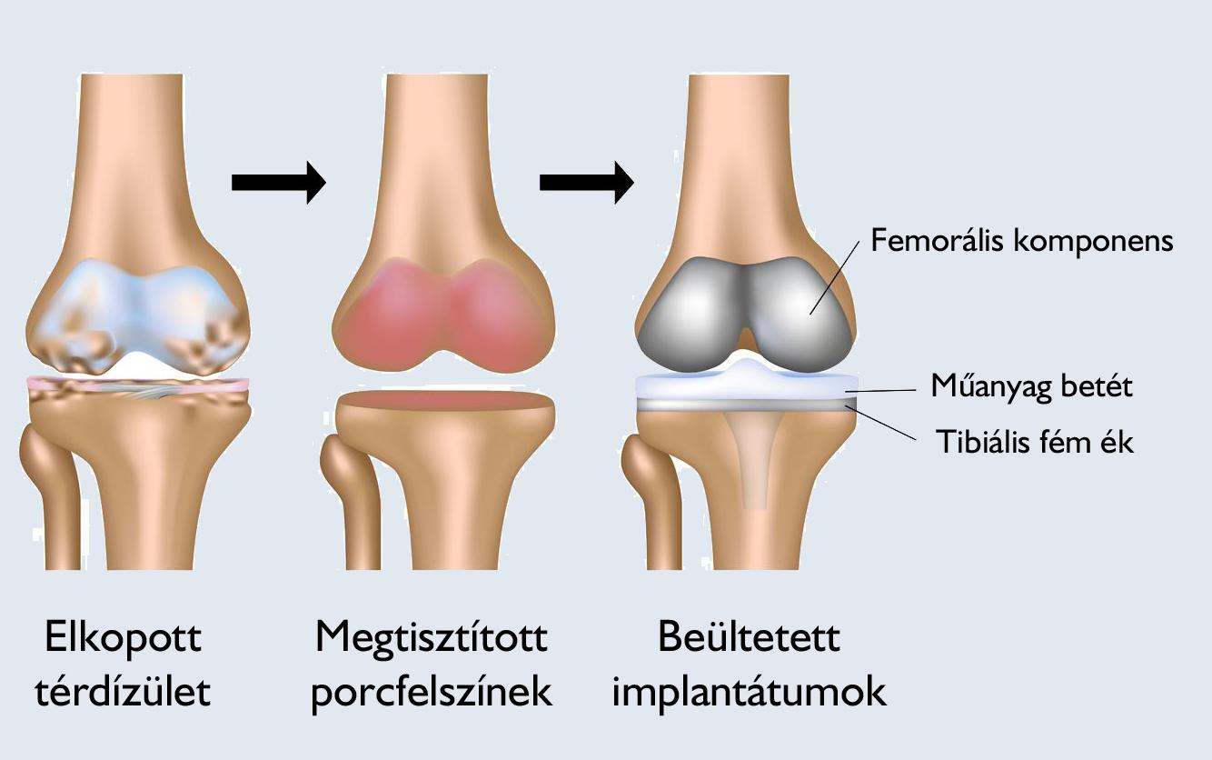 ízületi fájdalom zselatin recept ízületek törése törés után