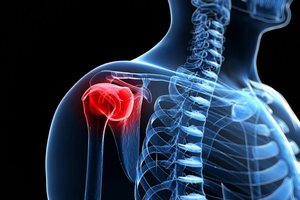 a nyaki és a vállízületek fájdalma