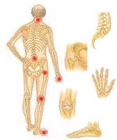rheumatoid arthritis ízületi károsodásának képe egy kar fáj a könyökízületben