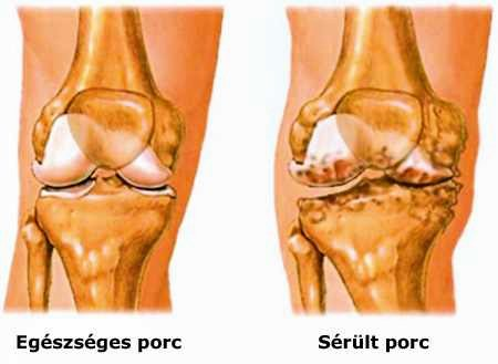 hogyan kezeljük a térdízületet az artrózis esetén