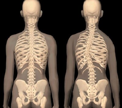 csípő görbület kezelése hip-sclerosis, mint kezelni