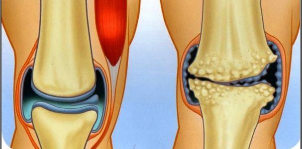 medencei artrózis kezelés mi a helyzet a bokaízület gyulladásával