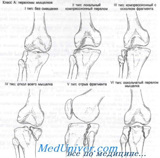 a térdízület belső ligamentumának törése vállízület összeroppant kezelése
