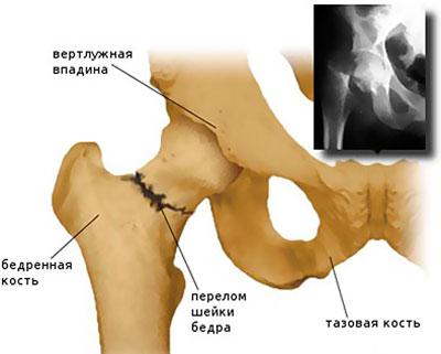 a csípőízület deformáló artrózisa 2-3 fokos kezelés sustastin kenőcs ízületekre