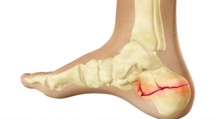 a bokaízület helyreállítása törés után váll fájdalom jele