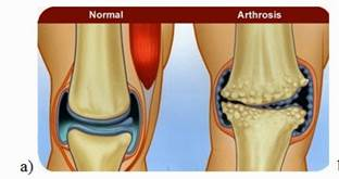 artrózis kezelése otthon