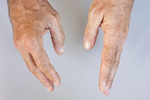 kopott térdízület hogyan lehet gyógyítani a térd artrózisát 1 fokkal