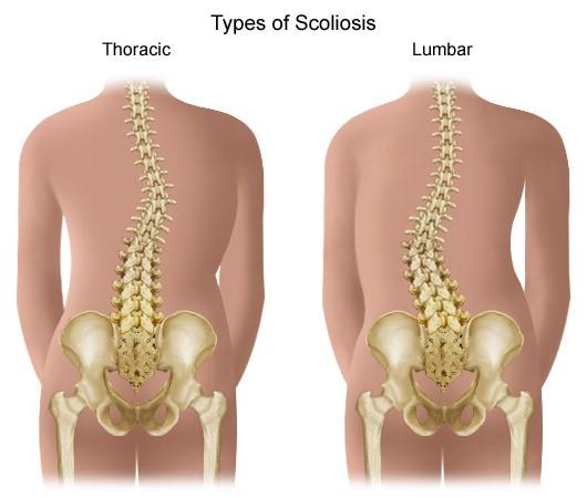 Csigolya artrózis tünetei és kezelése. Ízületi rák kezelése