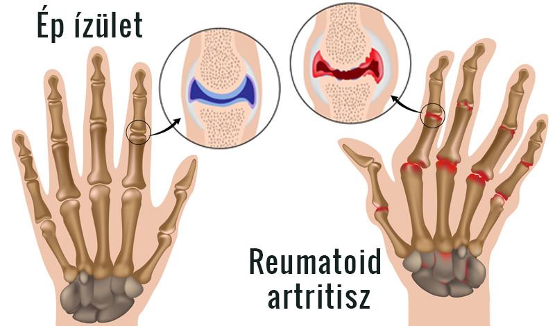 dimexid a csípőízület ízületi gyulladásában mik a kezelt rheumatoid arthritis tünetei