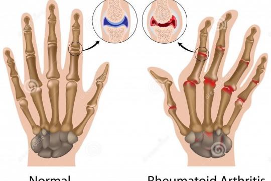 a térd artritiszének első tünetei ízületi betegség ápolási folyamat