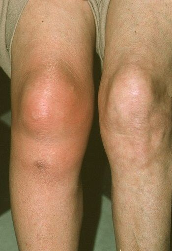 térdkárosodás szövődményei kenőcs a láb ízületeihez