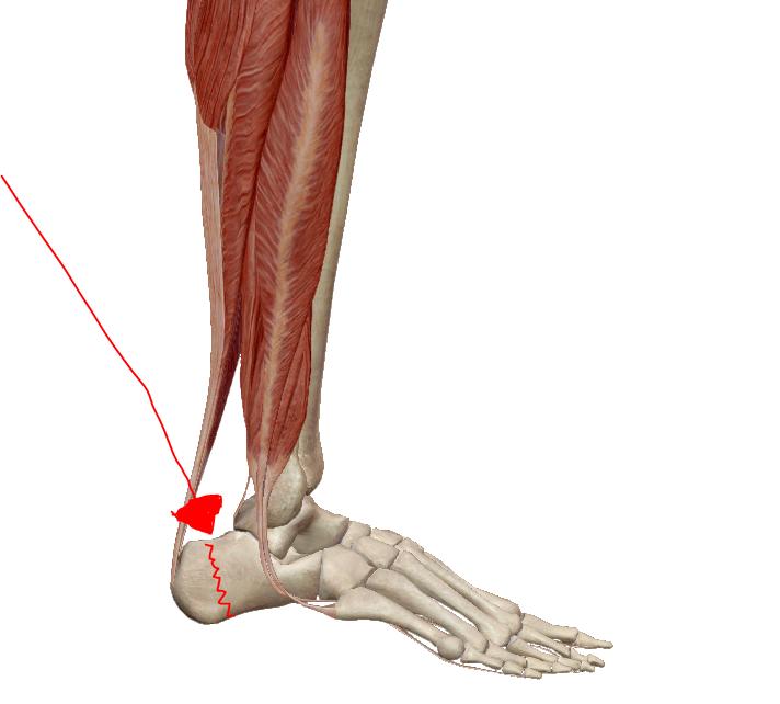 hátsó kenőcs csontritkulás esetén