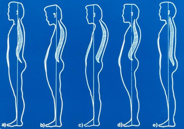 csípő görbület kezelése kiütötte az ízületi kezelést