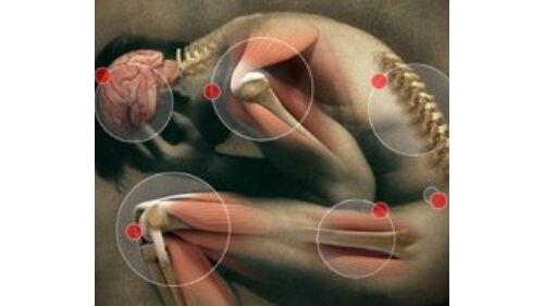 emberek gyógymódok ízületek éles ízületi fájdalom járás közben