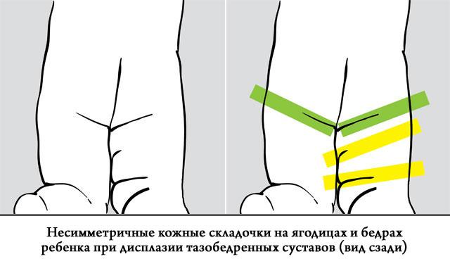 beteg térdízület derékfájás és csípőízületek