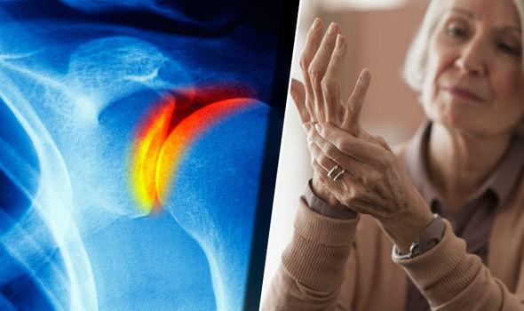 hogyan kezeljük ízületek ízületi gyulladást ízületi fájdalom, váll mozgás