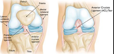 elsősegély ízületi sérülések esetén ízületi fájdalom és duzzanat járás közben