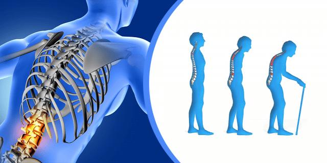 Csontritkulás – mindennapi jelek, melyekre figyelni kell!