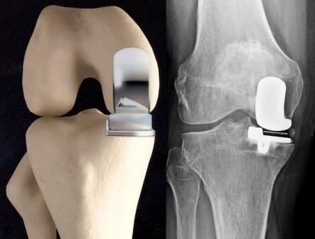 térd görbülete sérülés után a bokaízület gennyes gyulladása