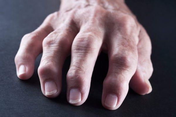 ízületi fájdalmak zsibbadása fáj a láb és a térd ízületei