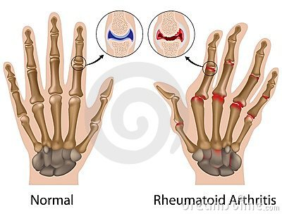 fájó térdízület duzzanat, mit kell tenni ujjízületi fájdalom ütés után