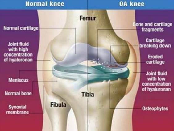 mi az a térd elzáródása az artrózisban az ízületi betegség 4 oka