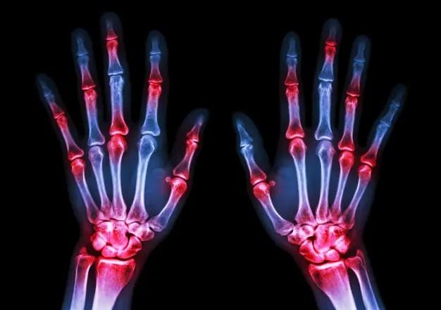közös vizsgálat rheumatoid arthritis esetén