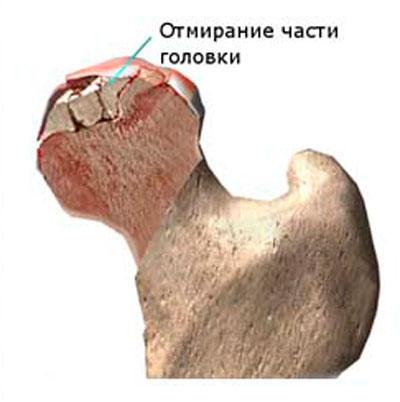 mi provokálja a fájdalmat a csípőízületben lágyrész károsodása a vállízület kezelésében