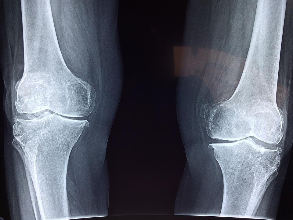 artrózis kezelés termálforrások