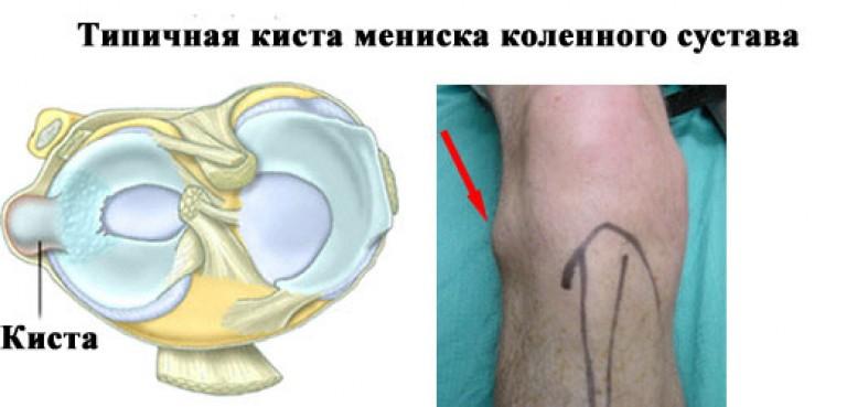 az ujjak ízületeinek ízületi gyulladásainak kezelése ahol a térd artrózisát és ízületi gyulladását lehet kezelni